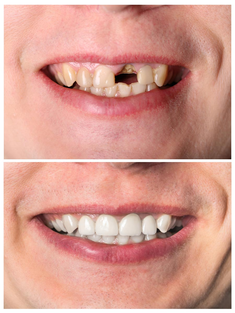 Tooth Implant in Seattle, Shoreline, Northgate, WA, Greenwood, WA