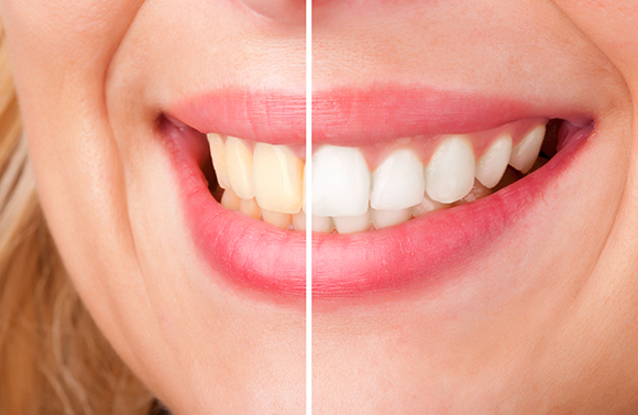 Teeth Whitening in Seattle, Shoreline, Ballard WA, Fremont WA, Greenwood WA