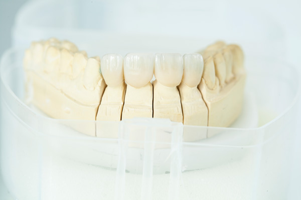 Cosmetic dentistry serving Ballard, WA, for crowns and bridges, Emergency dental services